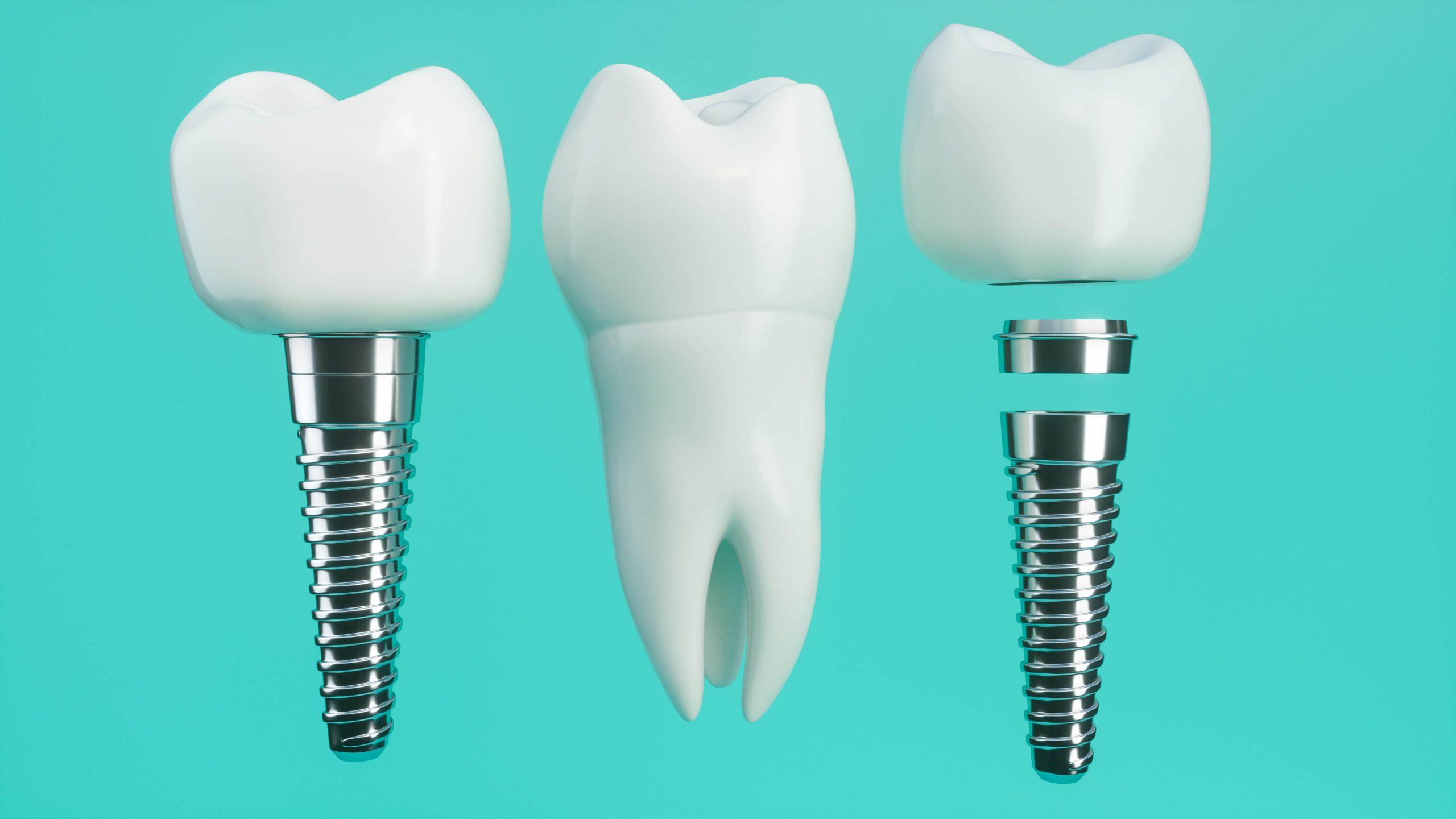 Implantate - zahnarztKorn